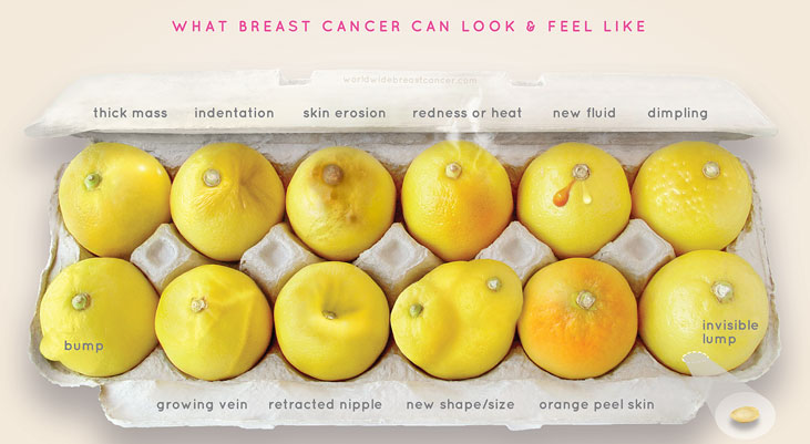 what_breast_cancer_looks_like