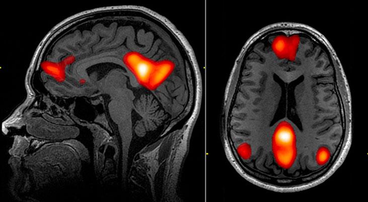 cerebro creatividad